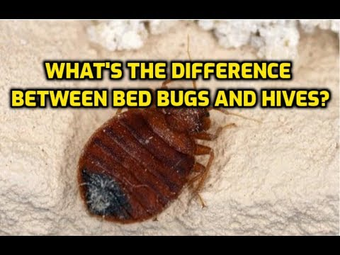 What's The Difference Between Bed Bugs And Hives?