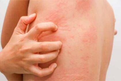 difference between hives and bed bug bites