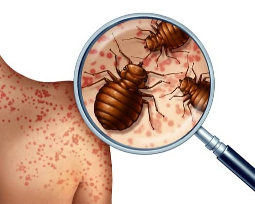 Why Do Bed Bugs Exist?