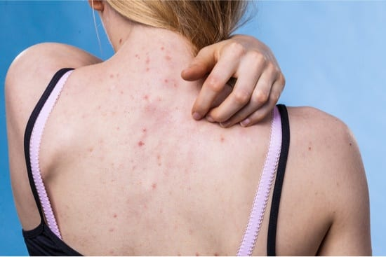 difference between acne and bed bug bites